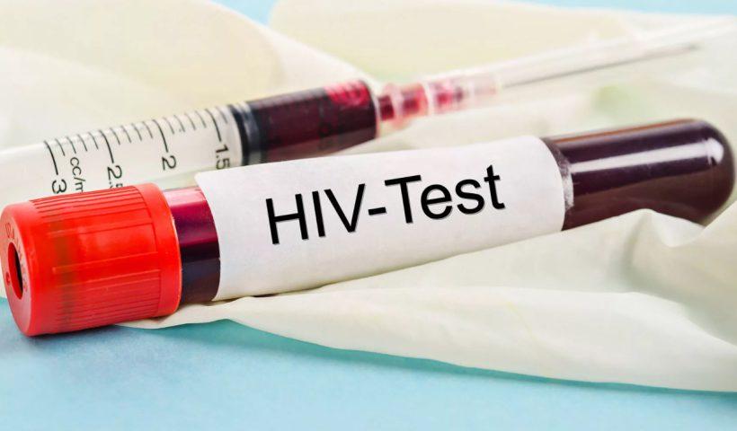 ВИЧ инфекция